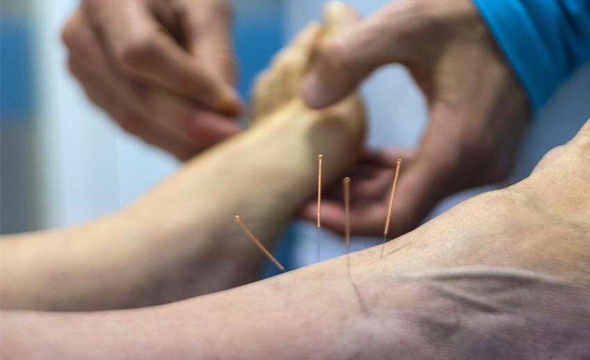 Acupuntura en Clínica Fisioterapia Fuentes - Cádiz